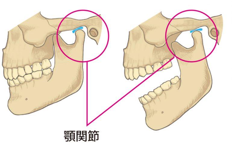 顎関節症|郡山で顎の痛みは、郡山ファースト歯科矯正歯科